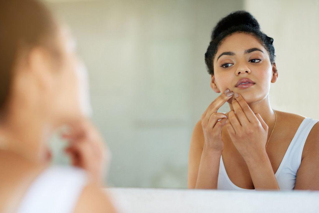 como calmar el acné