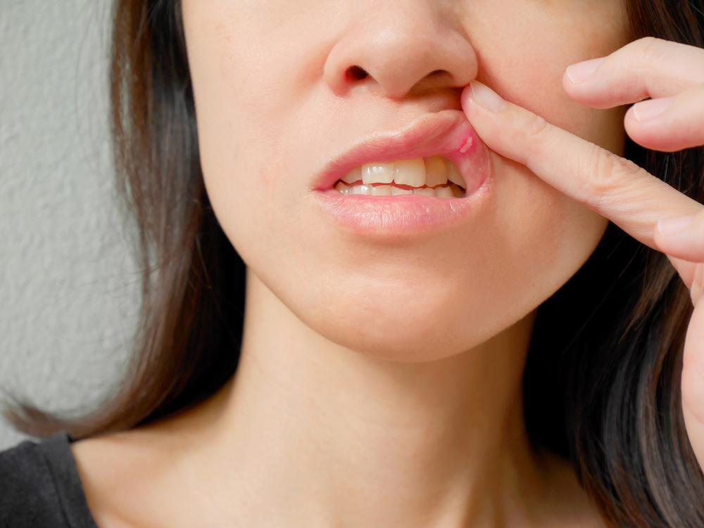 llagas en la boca