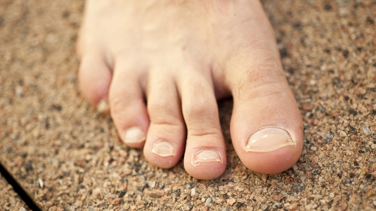 remedios para los hongos en las uñas
